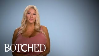 Botched | Allegra Explains Her Growing Giant Breasts | E!
