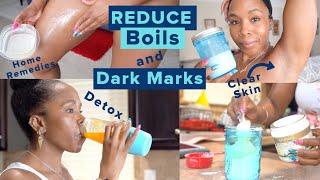 How to Get Rid of Boils, Dark Marks & Hidradenitis Suppurativa | Detox, Cleanse, & Sore Skin Care