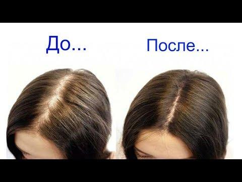 Эффективная маска от выпадения волос