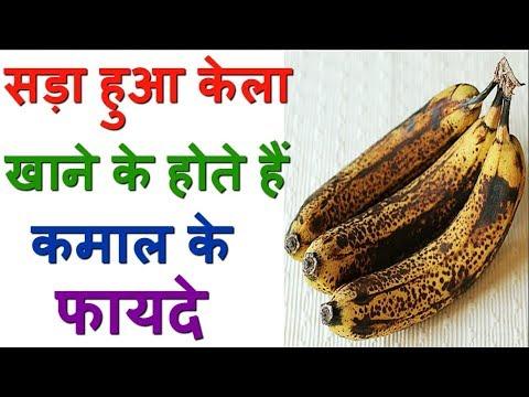 Amazing Health Benefits Of Overripe Banana
