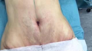Абдоминопластика с переносом пупка