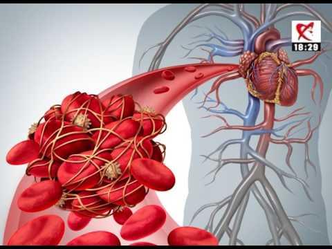 Dacă creșterea tensiunii arteriale, atunci când mersul pe jos