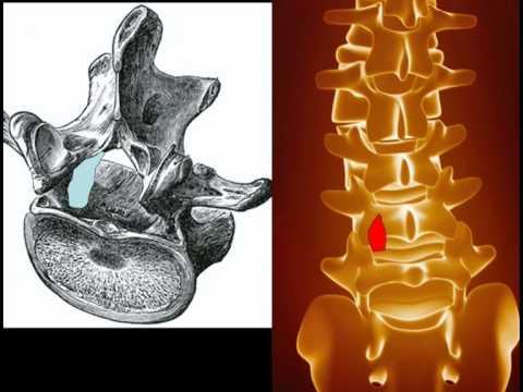 Der Muskelschmerz im Hals die Schulter