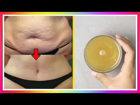 Anorexic pentru a pierde în greutate rapid