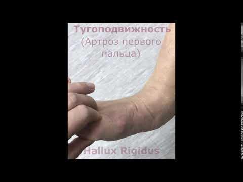 Артроз 1-го плюсне-фалангового сустава. Hallux Rigidus