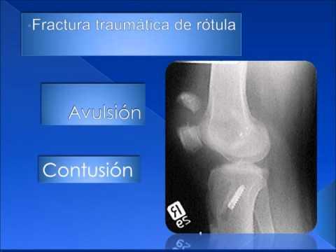 ¿Cuál es el bloqueo de la hernia de columna cervical