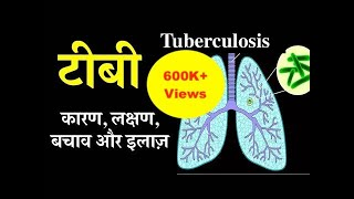 Tuberculosis causes, symptoms, treatment & prevention in Hindi | टीबी के कारण, लक्षण, बचाव और इलाज़