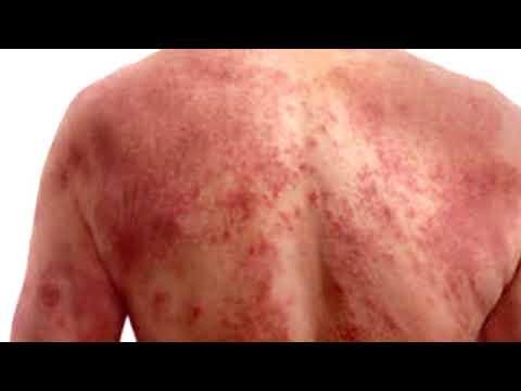 Die Behandlung des Ekzems von wangi
