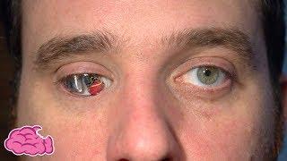 這個男子用「機械眼」來看世界|5個改變自己身體來得到超能力的人類