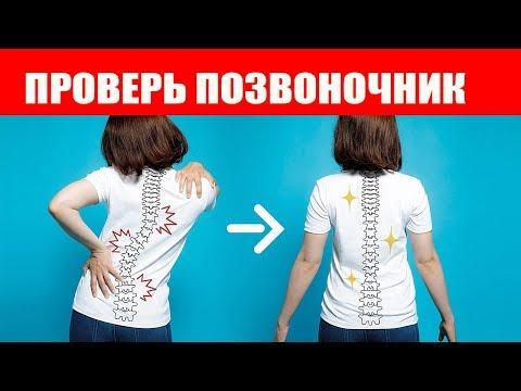 Левосторонний сколиоз грудного отдела симптомы что может быть