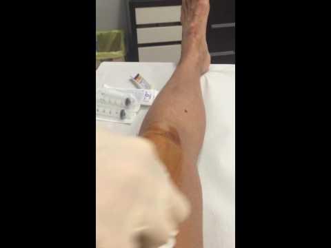 Articolazioni del ginocchio infiammate trattati