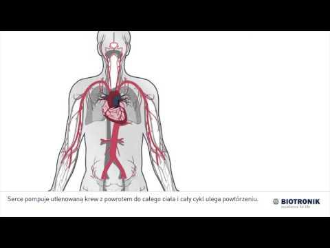 Przyczyny nadciśnienia nerkowo