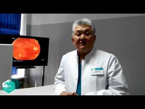 Сарапул центр коррекции зрения отзывы