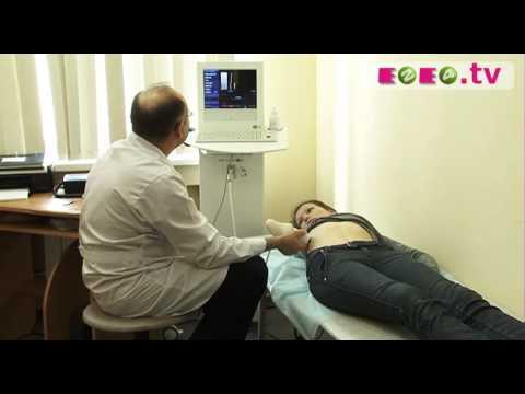 Гепатит в стадии цирроза