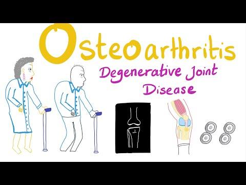 Boka artritisz első tünetei