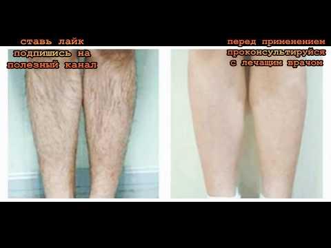 Wie gribok des Nagels des Beines von den Volksmitteln zu behandeln