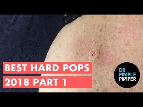 Best of Hardpops Part 1 2015 Revisited 2018!