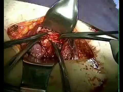 Riabilitazione chirurgia del gomito