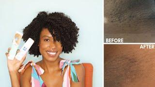 How to Get Rid of Ingrown Hairs and Dark Marks On The Bikini Line | PFB Vanish