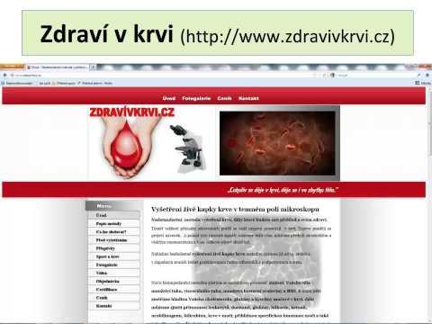 Výrobky pro diabetiky v Kaliningradu