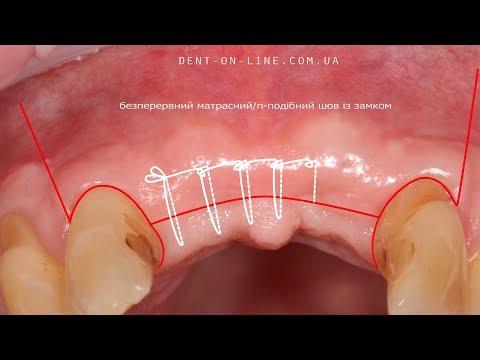 Види швів в стоматології/Dental sutures/Зашивание десны