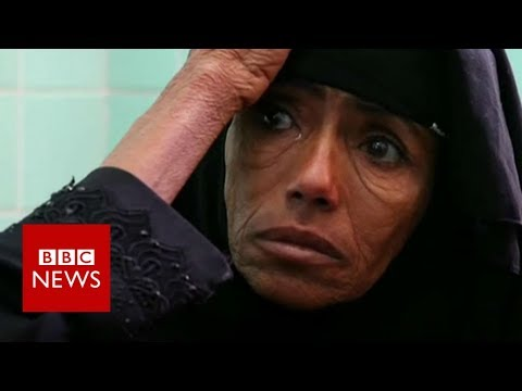 On brink of 'worst famine in 100 years' - BBC News