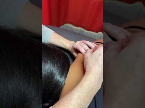 Dry Needling with FCAMPT, Shannon Michels