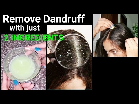 Video Magical Home Remedy to Remove DANDRUFF at home//Dandruff treatment/How to get rid of dandruff