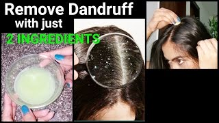 Magical Home Remedy to Remove DANDRUFF at home//Dandruff treatment/How to get rid of dandruff