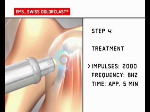 Swiss Dolarcast - indications treated