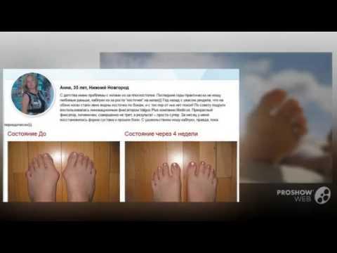 Ортопедические шины для вальгусной деформации