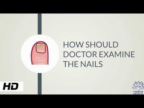 Jak i dlaczego lekarz powinien oglądać paznokcie?