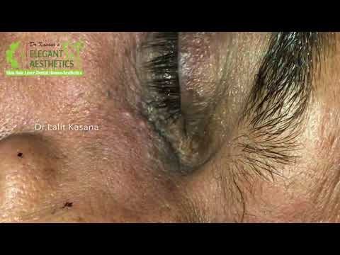 Download Removal Of 50 Years Old Blackheads Full Video By Dr Lalit
