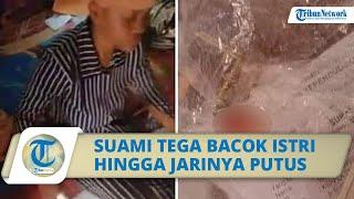 Seorang Suami di Indramayu Tega Bacok Istri hingga Jarinya Putus, Lantaran Masalah Ekonomi