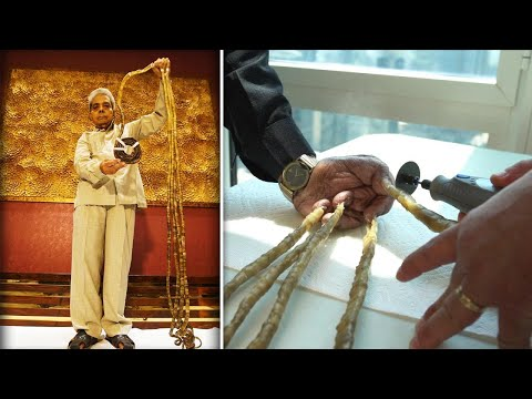 The Longest Fingernails in the World Have Finally Been Cut