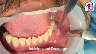 Incision and Drainage of Tooth Abscess Draining Pus