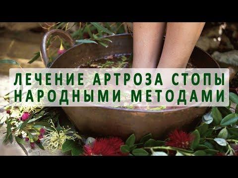 Лечение артроза стопы методами народной медицины