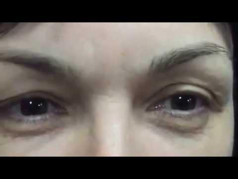 Лазерный лифтинг вокруг глаз отзывы