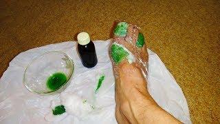 Сильнейшее средство от грибка ногтей и запаха ног. Вылечить Грибок на ногах и ногтях и убрать запах
