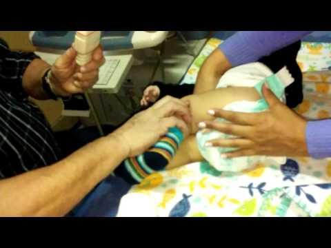 Dolor de espalda inferior izquierda lado durante el embarazo