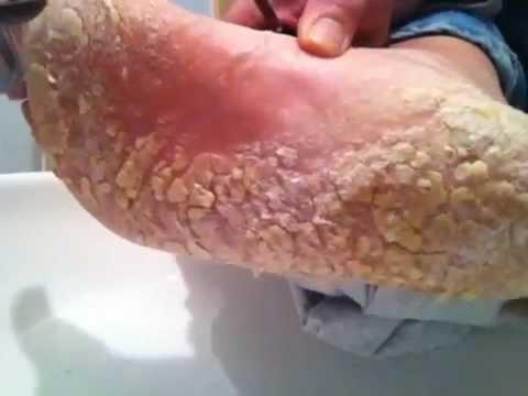 Da che leczema microbico è pericoloso