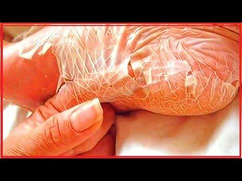 Donde ponerse bueno del hongo de las uñas