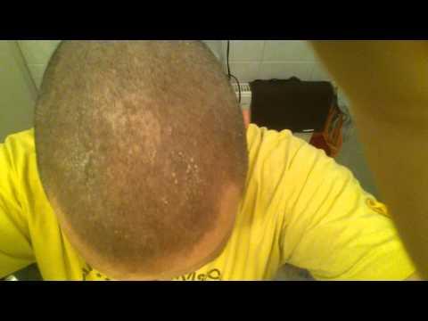 Die Creme das Wachs bienen- von der Schuppenflechte die Rezensionen negativ