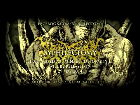 SYPHILECTOMY - Abnormality Through Purulent Sputum [Official Video Stream] Mp3