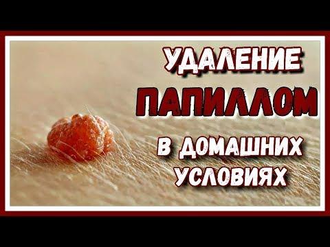 Autoimmun betegségek kezelése helmintákkal