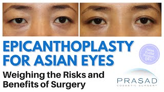 Epicanthoplasty for Asian Eyes - Risks and Benefits of Revealing More of the Inner Corners of Eyes