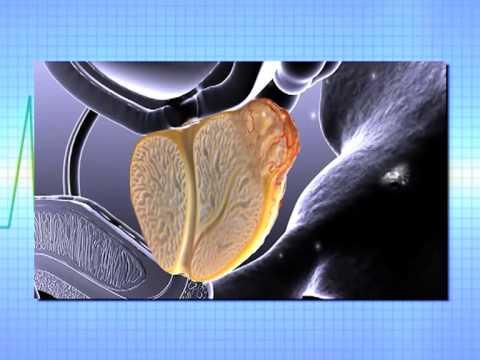 Hormonālās ārstēšanas prostatas adenoma