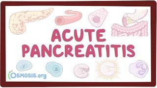 Acute pancreatitis - causes, symptoms, diagnosis, treatment, pathology