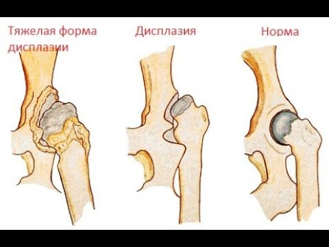 Хронический синовит коленного сустава видео
