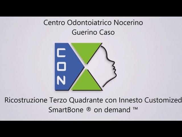 SmartBone On Demand case by Dr. Guerino Caso
